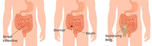 What is an Ileostomy?